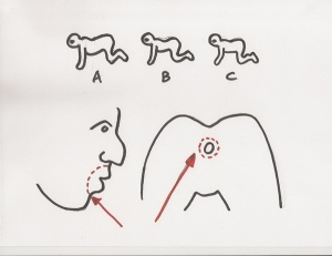 1340005361_the-human-centipede-first-sequence-diagram-1